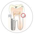 Parodontie