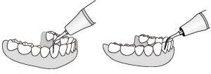 insert dentaire Kavo GK1